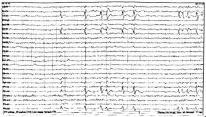 Роландическая эпилепсия.