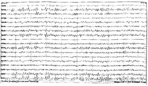 Роландическая эпилепсия в пожилом возрасте.