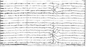 ЭЭГ при парциальной лобной эпилепсии.