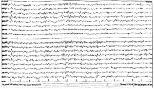 ЧМТ, ушиб головного мозга стадия восстановления ЭЭГ