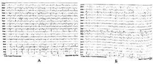 диагностика артефактов ЭЭГ