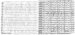 Дифференциальный диагноз глазодвигательного артефакта