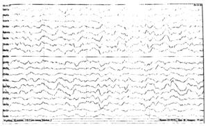 ЭЭГ Диффузная дельта-активность