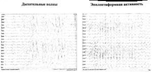 пароксизма «дыхательных» волн и пароксизма эпилептиформной активности