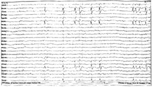 Доброкачественные эпилептические разряды детства