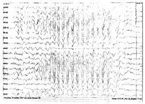 3-Гц комплексы спайк-волна