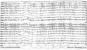 ЭЭГ при энцефалопатии II степени