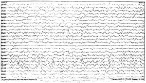 ЭЭГ при энцефалопатии III степени