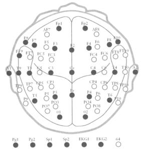 Система размещения электродов «10-20»