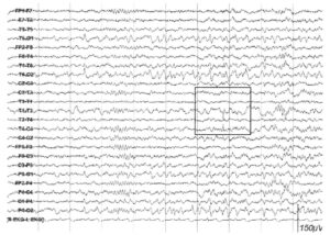 Доброкачественные эпилептиформные транзиты сна