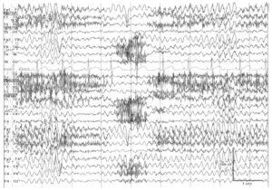 Генерализованная мономорфная θ-активность с частотой 5-6 Гц