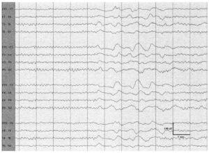 Интермиттирующие вспышки нерегулярной δ-активности с частотой 1-2 Гц