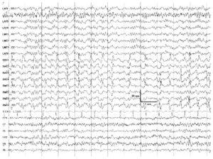 Сравнение интракраниальной и скальповой записи ЭЭГ