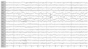 Интериктальная эпилептиформная активность
