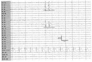 ЭЭГ демонстрирует дуплет комплексов спайк-волна