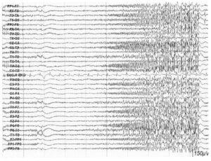 Диффузный электродекрементальный ответ