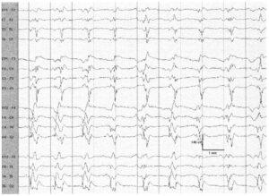 Генерализованные периодические эпилептиформные разряды