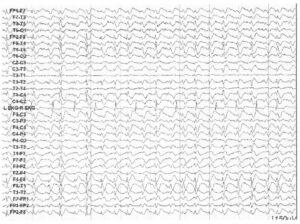 ЭЭГ пациента с постаноксическим эпилептическим статусом генерализованных бессудорожных приступов