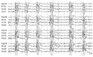 ЭЭГ при подостром склерозирующем панэнцефалите