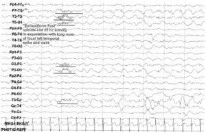 паттерн эпилептического приступа
