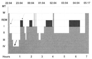 Гипнограмма цикла сна в норме