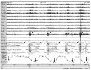 5-минутная эпоха с апноэ