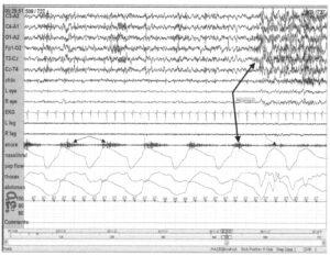 30-секундная запись пробуждения, вызванного нарушением дыхания