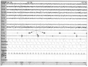 полисомнограмма с периодическими движениями ног во сне