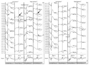 Интраоперационный мониторинг ССВП срединного нерва