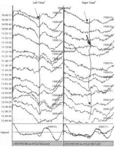 Интраоперационный мониторинг ССВП