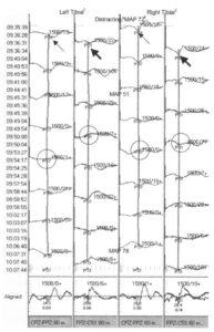 Интраоперационный мониторинг ССВП большеберцового нерва