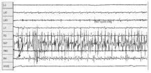 Интраоперационный мониторинг спонтанной ЭМГ