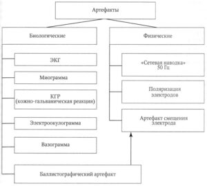 Классификация артефактов на ЭЭГ