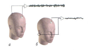 Типы электроэнцефалографических отведений