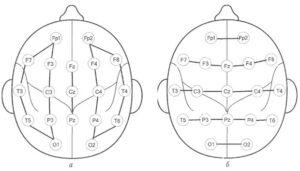 Биполярные ЭЭГ монтажи