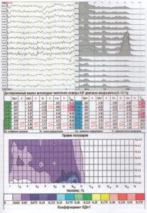 Дисперсионный анализ ЭЭГ