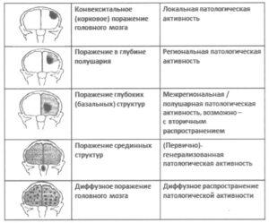 патологической активности на ЭЭГ при различной локализации поражения