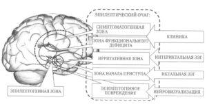 эпилептический очаг