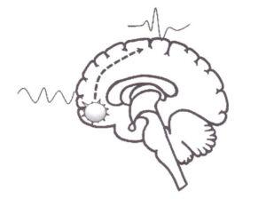 Локальные и дистантные эпилептиформные изменения на ЭЭГ при структурной эпилепсии