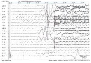 начальная стадия эпилептического приступа