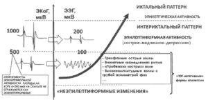 Иктально-интериктальный континуум