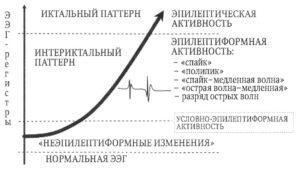 Иктально-интериктальный континуум на ЭЭГ