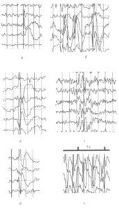 Эпилептиформные графоэлементы ЭЭГ