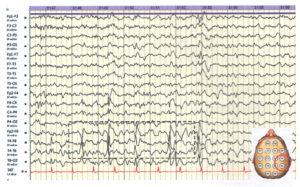 Очаговая эпилептиформная активность