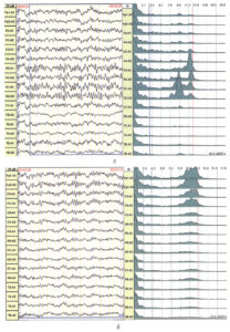 Компонент невротического паттерна ЭЭГ