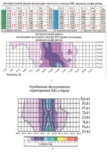 Гипофронтальность на ЭЭГ