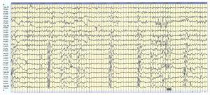 Бессудорожный эпилептический статус